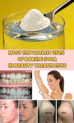 Most important uses of baking soda in beauty treatments