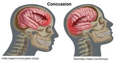 Concussion is a Brain Movement Injury