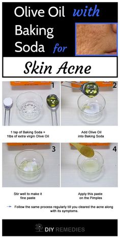 Olive Oil with Baking Soda For Pimples Treatment Baking Soda For Pimples, Baking Soda For Skin, Natural Acne Treatment, Acne Treatments, Hormonal Acne Remedies, Oils For Scars, Acne Help, Home Remedies For Acne