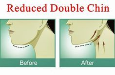 O melhor exercício para você se livrar do indesejado queixo duplo sem cirurgia!   Cura pela Natureza