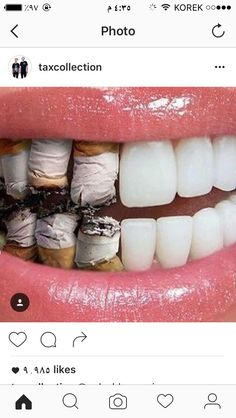 The smoking effects on mouth are as bad as they are on your lungs. It impacts your overall health adversely. Smokers who also drink heavily Creative Advertising, Ads Creative, Creative Posters, Advertising Design, Advertising Agency, Creative Director, Dental Health, Oral Health, Ad Design