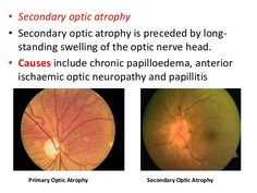anatomy-of-optic-nerve-and-its-blood-supply-59-638.jpg 638×479 pixels