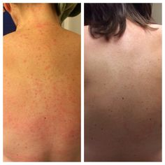 Our sweet friend & business partner, Jennifer...who is a Nurse Practitioner...has struggled with back acne for years. Started using our UNBLEMISH Regimen...the picture on the left was taken on Monday. FOUR DAYS LATER...the picture on the right was taken..YES I said 4 DAYS AGO!!!  Stop using products that DO NOT WORK!! 60 day money back guarantee!
