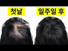 I Went from Thin to Thick Hair in Just a Week – Hair Care Tips Hair Remedies For Growth, Home Remedies For Hair, Hair Growth Treatment, Hair Growth Oil, Thicken Hair Naturally, Homemade Hair Treatments, Reverse Hair Loss, Get Thicker Hair, Extreme Hair Growth