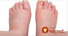 Čo pomáha na opuchnuté nohy? Vyskúšajte 7 overených tipov Feet Care, Herbalism, Detox, Fitness, Health, Medicine, Anatomy, Salud, Health Care