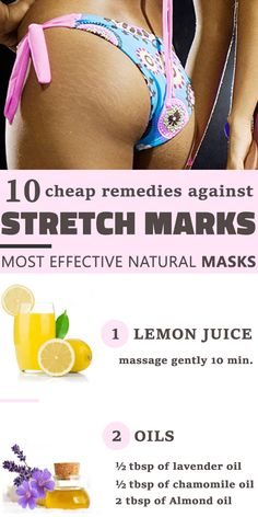 Stretch marks are the result of a sudden weight loss or weight gain.We propose you these remedies which will definitely improve the appearance of your skin.