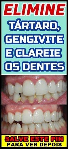 Como Clarear Os Dentes Em 1 Minuto Passo A Passo Dicas De Beleza