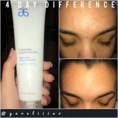 Amazing results just 4 days after beginning Arbonne's acne care Clear Future Line!