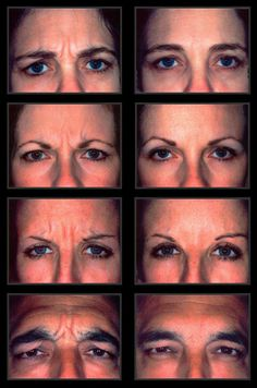Botox Gone Very Wrong A Little Unusual Pinterest