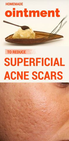 Homemade ointment to reduce superficial acne scars.