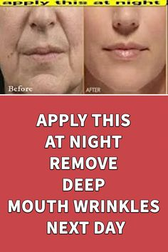 This mask will help you reduce face wrinkles and look youthful skin face skin no makeup skin requires commitment skin secrets skin tips Skin Care Home Remedies, Wrinkle Remedies, Home Remedies For Face, Home Beauty Tips, Health And Beauty Tips, Beauty Products, Lush Products, Diy Beauty Face, Beauty Skin