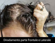 clelia-mattana-alopecia femminile-capelli-tretinoina-rughe Module, Engagement, Hairstyle, Engagements