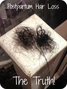 After the birth of my son, my hair started falling out. At first, it was no big deal. I mean, as a curly haired girl, I've been known to clog a few drains in my day. BUT… this was different… th