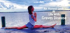 Brain fog, no one understands, anxiety, bulging eyes, can't gain weight? You are in good company with those of us that suffer with graves disease. Life can...  Suffer w/ HYPERTHYROIDISM or know someone who does? Ƹ̵̡Ӝ̵̨̄Ʒ  Great read on what Graves sufferers go through, daily  ▼  http://thyroidnation.com/an-honest-letter-about-life-with-graves-disease/  #Hyperthyroid #Graves