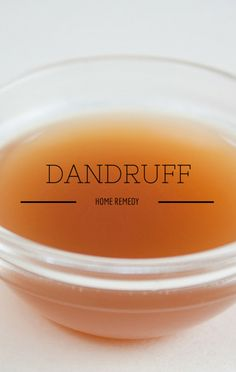 Dr. Oz revealed that apple cider vinegar is a cheap, effective home remedy for dandruff. http://www.wellbuzz.com/dr-oz-beauty/dr-oz-what-is-folliculitis-treating-intertrigo-prevent-dandruff/