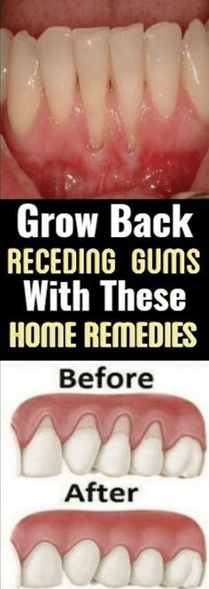 Grow Back Your Receding Gums With These Natural Remedies If you are experiencing receding gums then you have found a great article to read. In this article you will find 9 of the best home natural remedies to help grow back your receding gums. Your gums Teeth Health, Oral Health, Dental Health, Public Health, Gum Health, Healthy Teeth, Face Health, Healthy Facts, Health Shop