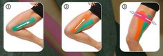 -Groin Pull Apply a full I strip from the medial side of the groin toward the Roller Derby, K Tape, Spondylolisthesis, Kinesiology Taping, Athletic Training, Pregnancy Health, Sports Medicine, Dressing, Massage