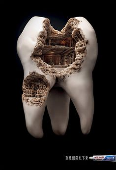 "Roman Civilization Cavity"" is a part of a print advertising campaign for Maxam's toothpaste. The idea is to not let germs settle down on your teeth, or else you will end up with a ""Colosseum"" cavity. The design was made by agency JWT Shanghai. via tumblr"