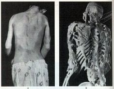 Stone Man Syndrome – The Disease That Slowing Entombs Humans Alive