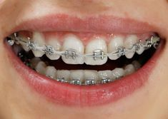 Although at the end, one gets a beautiful smile, the traditional wired braces br. - Dentist in Hyderabad - Ceremic Dentist In, Braces Dentist, Braces Smile, Invisible Braces, Beautiful Smile, Dental, Teeth, Traditional, Hyderabad