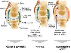 artrose-wervelkolom
