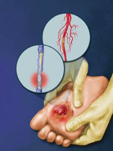 cure for neuropathy pain - diabetic peripheral neuropathy treatment.neuropathy without diabetes 7352175848 Nerve Damage Treatment, Nerve Damage Symptoms, Peripheral Nerve, Peripheral Neuropathy, Diabetic Nerve Damage, Diabetic Neuropathy Treatment, Neuropathic Pain, Nerve Pain