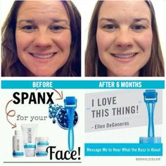 Roll Away Your Wrinkles with the Micro-Needling Skin Roller from Rodan + Fields - Email loveyourskinxo@gmail.com for specials