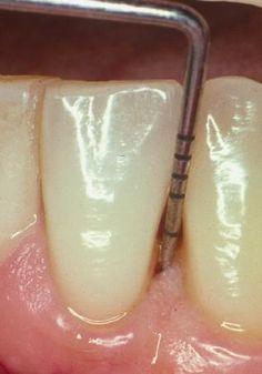 Camino hacia la Vida: Día 293 Mi Personaje rígido. Parte 1 #tensión #dentista #engaño