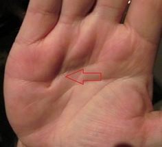 "The skin in the palm starts pulling in. Originally there had been a nodule that now begins the ""concolution phase""."