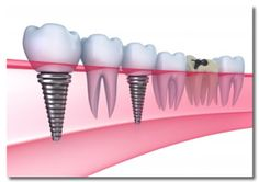 Dental Implants «  Dentist | Las Vegas Dental Group Dentists | 702-323-0820
