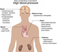 How to lower blood pressure suddenly, three best home remedies for hypertension, best foods to reduce blood pressure