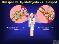 """lgunas células inmunes donadoras maduras que se mezclan entre las células madre de la sangre trasplantadas reconocen a los antígenos en las células del cuerpo del paciente (huésped) como """"extraños"""""""