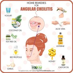 Signs and symptoms of angular cheilitis will almost show up at the corners of the mouth. Learn more about cracks corners of mouth medical diagnosis and also its therapies. Top 10 Home Remedies, Natural Home Remedies, Cracked Corners Of Mouth, Chapped Lips Remedy, Clear Skin Diet, Bee Propolis, Mouth Sores, Cracked Lips, Dry Lips