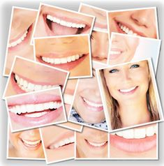 Smile Dental, Dental Care, Face Collage, Collage Photo, Female Lips, Dental Cosmetics, Cosmetic Treatments, Dental Surgery, Smile Face