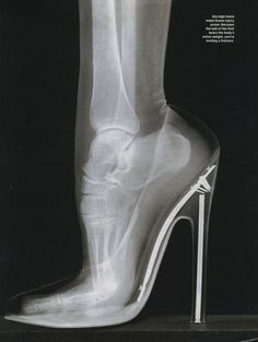 High heels may be attractive, but they can alter posture and biomechanics, leading to pain and other health issues.