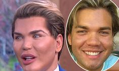 This is just plain sad. Human Ken Doll Rodrigo Alves isn't addicted to plastic surgery Botched Plastic Surgery, Bad Plastic Surgeries, Plastic Surgery Gone Wrong, Plastic Surgery Photos, Celebrity Plastic Surgery, Surgery Gift, Human Doll, Ken Doll, Yesterday And Today