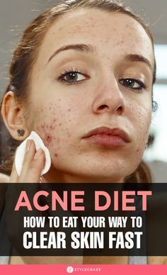 The Anti-Acne Diet: How To Eat Your Way To Clear Skin: When it comes to acne, your diet has a massive impact on its occurrence. And while you cannot just make it vanish with your nutritional intake, you can certainly influence it. Depending on your i Clear Skin Fast, How To Clear Skin, Acne Reasons, Pin On, Acne Free, How To Get Rid Of Acne, Acne Skin, Acne Scars, Skin Care