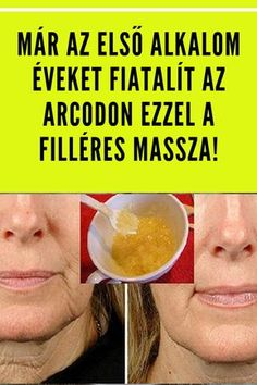 Diy Beauty, Beauty Hacks, Nasolabial Folds, Health 2020, Natural Colon Cleanse, Health Eating, Natural Cleaning Products, Health And Beauty Tips, Herbal Remedies