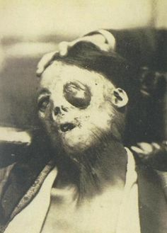 Early Japanese Medical Oddities