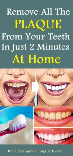 Naturally Whiten Teeth: 10 Ways To Remove Tartar Stains From Your Teeth oral care care cleanses care for kids care kit care nursing care packaging Causes Of Mouth Ulcers, Tartar Removal, Receding Gums, Natural Teeth Whitening, Best Oral, Oral Hygiene, Oral Health, Health Care