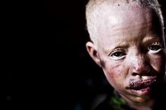 Cursed Skin.Paradoxically albino people are considered cursed people in swuahili culture. A baby albino born is seen as a big disgrace for the entire community but once the albino is dead he becames a source of luck for his killer. Lack of culture, poverty and superstition have become a dangerous mix specially in Eastern Africa where nowadays people are being hunted like animals to be sold in pieces in one of thousands of black markets that exists from Kenya to Cameroon
