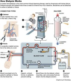Infographic on how dialysis works
