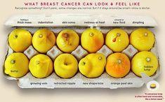 Jak może wyglądać i być odczuwany rak piersi? Rozpoznajesz niektóre objawy? Nie panikuj, niektóre zmiany mogą być niegroźne. Ale jeśli się utrzymują, bądź mądra i pokaż je lekarzowi.  Od lewej, pierwszy rząd: piersi są nabrzmiałe, pojawiło się w piersi wklęśnięcie, boli skóra piersi, skóra jest zaczerwieniona lub gorąca, pojawiła się dziwna wydzielina, pierś ma widoczne dołeczki Od lewej, dolny rząd: guz, nabrzmiałe żyły, wklęśnięcie brodawki, nowy kształt lub rozmiar, 'skórka…