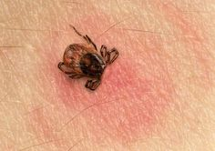 Warning: Tick Repellent and Lyme Disease Both Stress the Liver