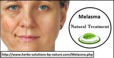 Melasma Symptoms, Causes, Diagnosis and Natural Treatment