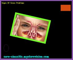 Signs Of Sinus Problems 075542 - Cure Sinusitis