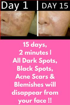 15 days, 2 minutes All Dark Spots, Black Spots, Acne Scars & Blemishes will disappear from your face ! This is a very simple natural treatment that will take only 2 minutes for preparation and in just 15 days will give you a new look that is flawless, Acne Remedies, Natural Remedies, Herbal Remedies, Blemish Remedies, Health Remedies, Cold Remedies, Looks Dark, Coconut Oil For Acne, Beauty Hacks