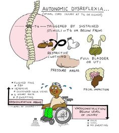 Neurogenic Shock Symptoms | Spinal Cord Trauma: Autonomic Dysreflexia