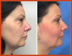 Acne Scar Removal - Tips and Tricks On Microdermabrasion * Be sure to check out this helpful article. #AcneScarRemoval