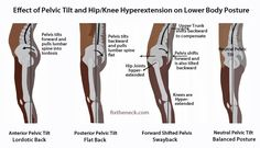 Effects of pelvic tilt & Hip/ knee hypertension